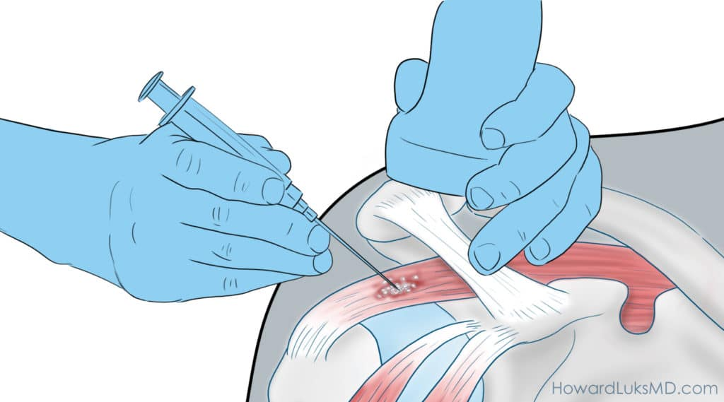 calcific tendonitis treatment with injection