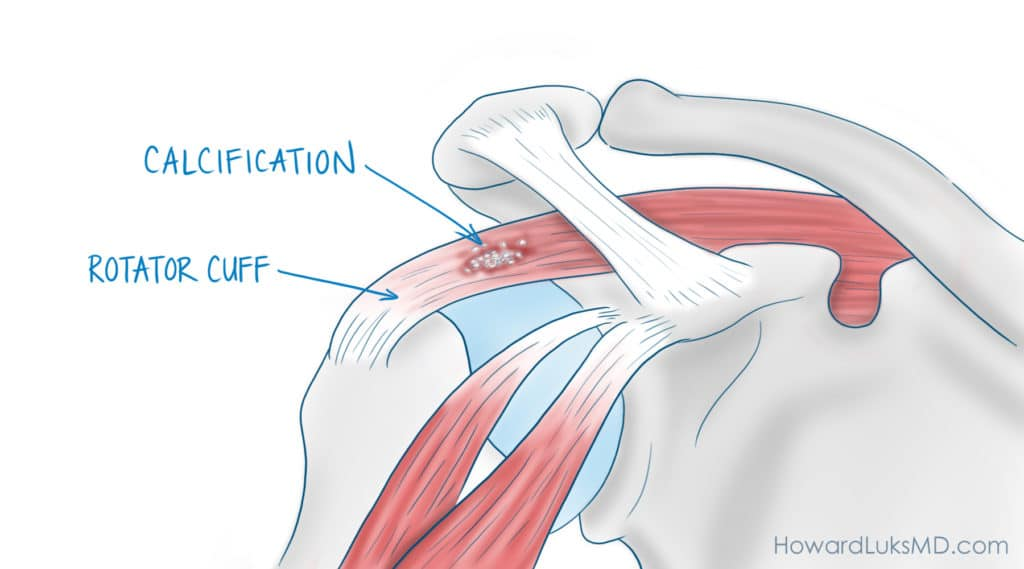 What is calcific tendonitis