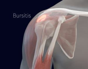 Shoulder bursitis can cause snapping