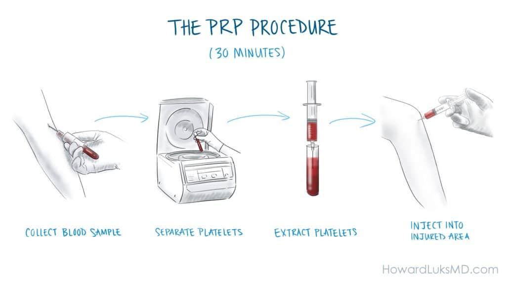 how prp is prepared