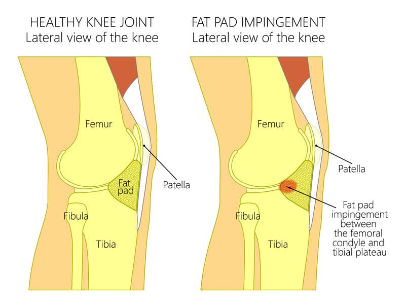 fat pad impingement and anterior knee pain