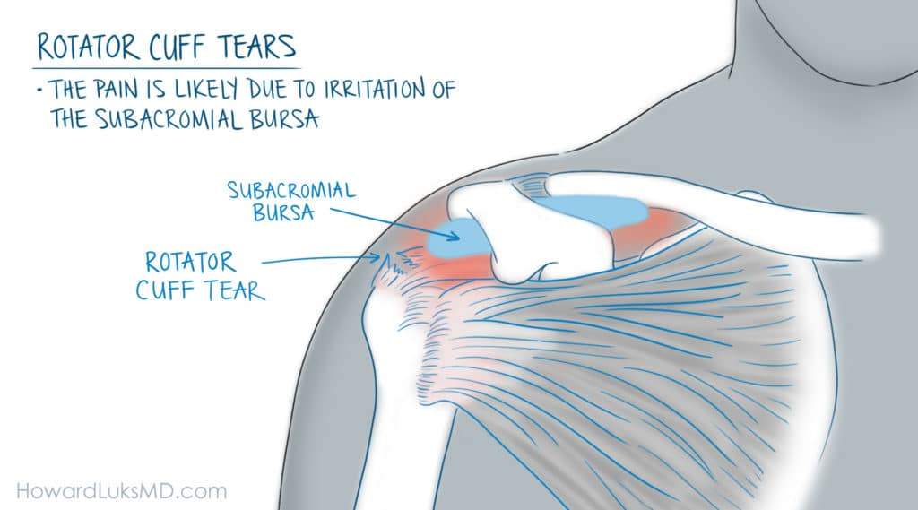 Rotator cuff tear and bursitis as a cause of shoulder pain at night