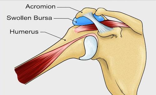 subacromial bursitis night pain