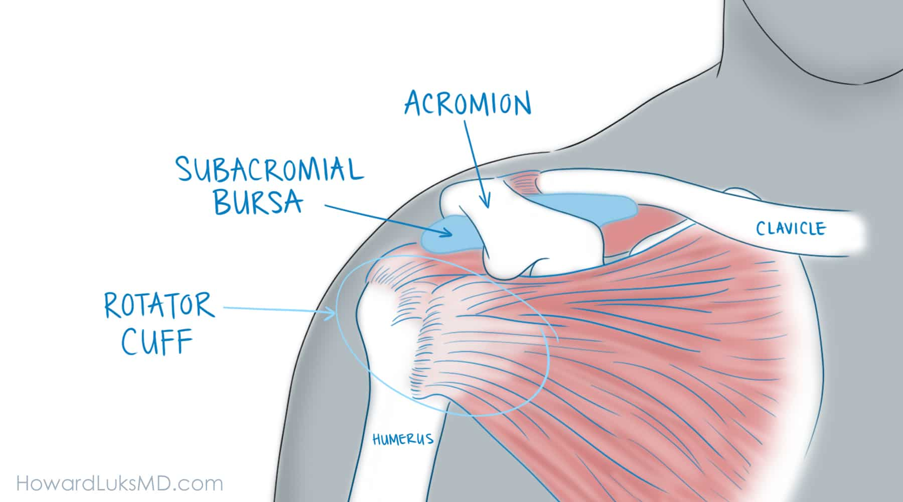 What Are The Causes Of A Rotator Cuff Tear