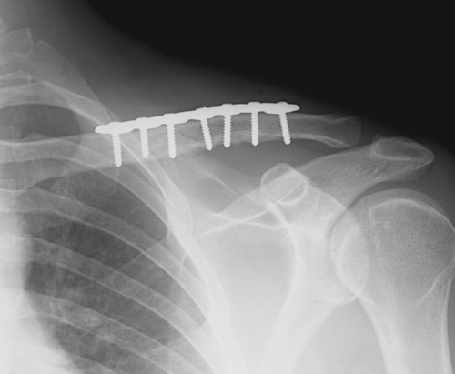The Broken Clavicle or Collar Bone – Four Myths You Need To