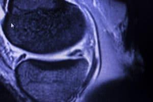 MRI meniscus tear
