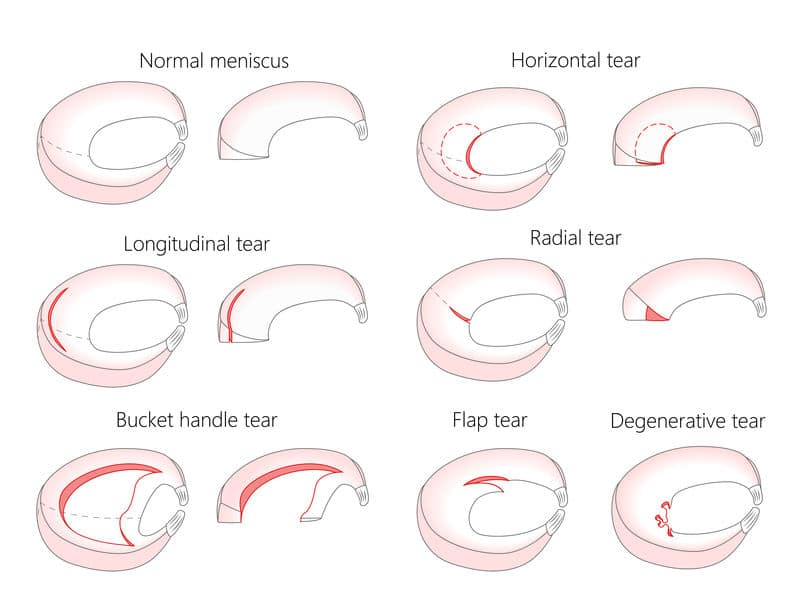 different types of meniscus tears