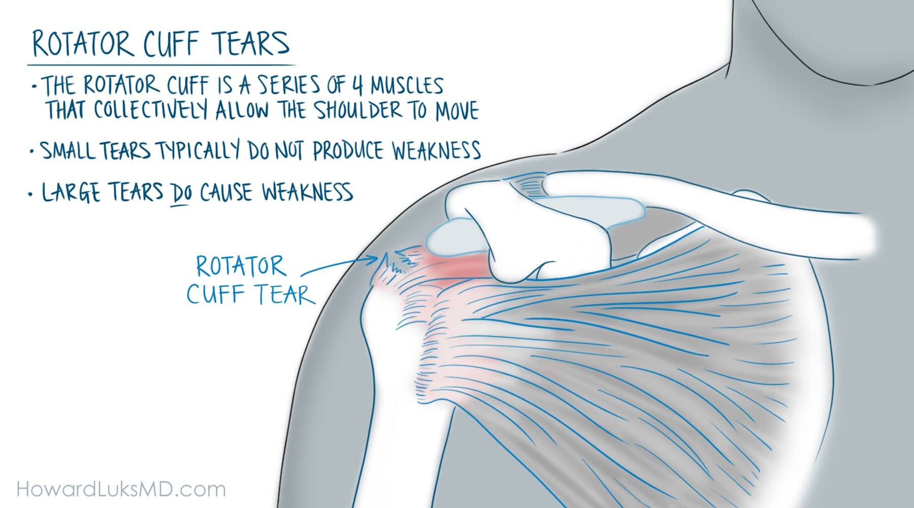 rotator cuff tear after shoulder injury