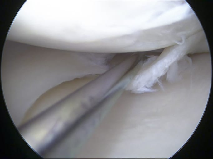 meniscus tear can cause pain behind the knee