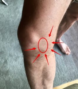inner knee pain due to arthritis