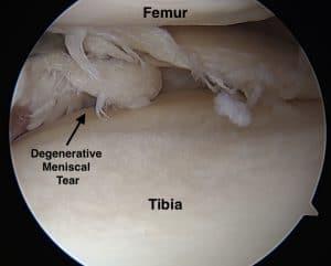 degenerative meniscus tear