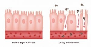 leaky gut due to fructose