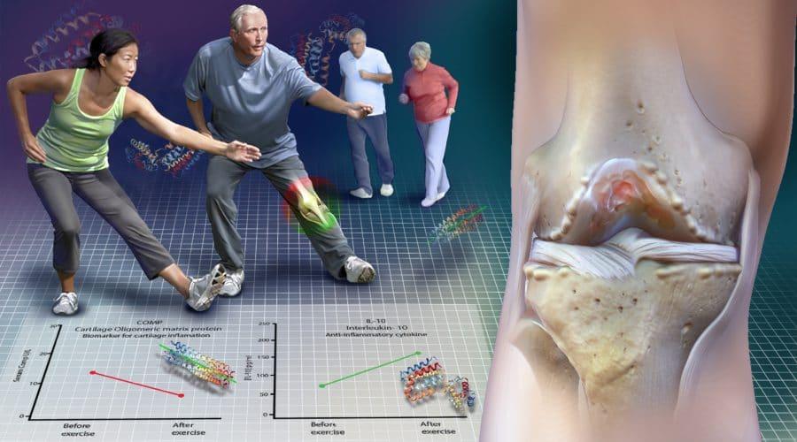 Exercising with knee osteoarthritis is OK