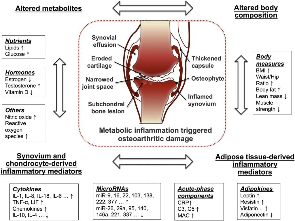 inflammation and knee arthritis
