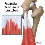 tendon injury anatomy