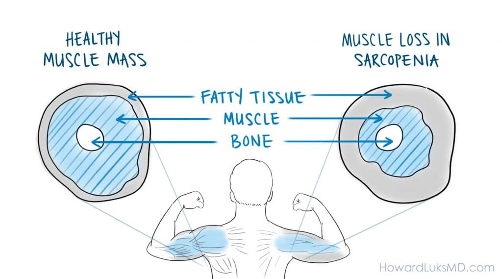 Sarcopenia age related muscle loss