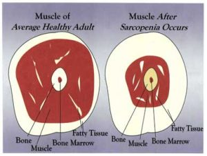 sarcopenia and muscle atrophy