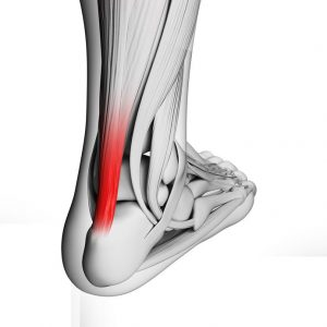 Achilles tendinopathy neuroplastic training