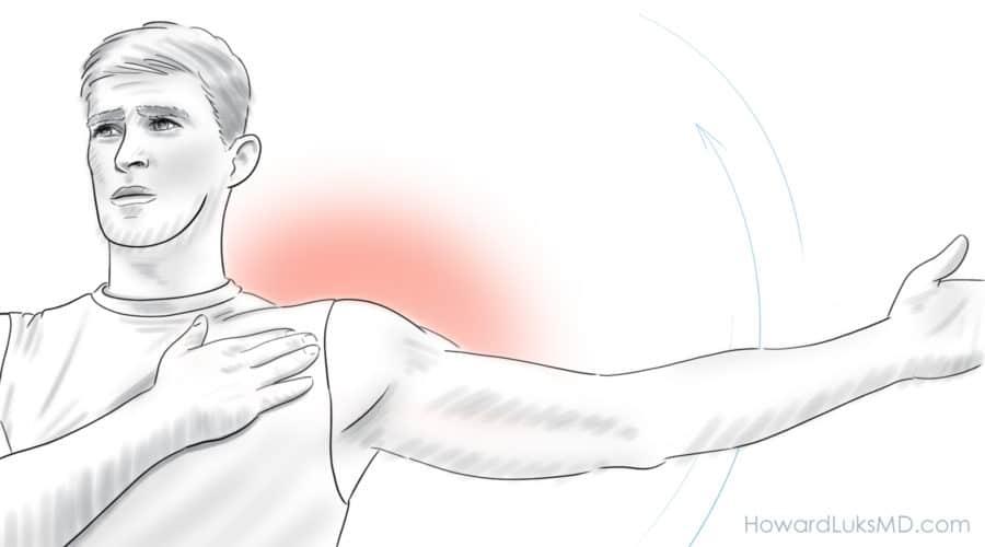 Frozen shoulder video answers