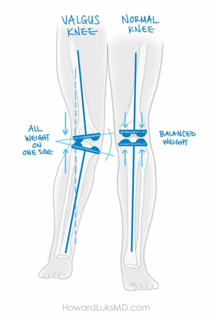 knock kneed deformity and knee arthritis