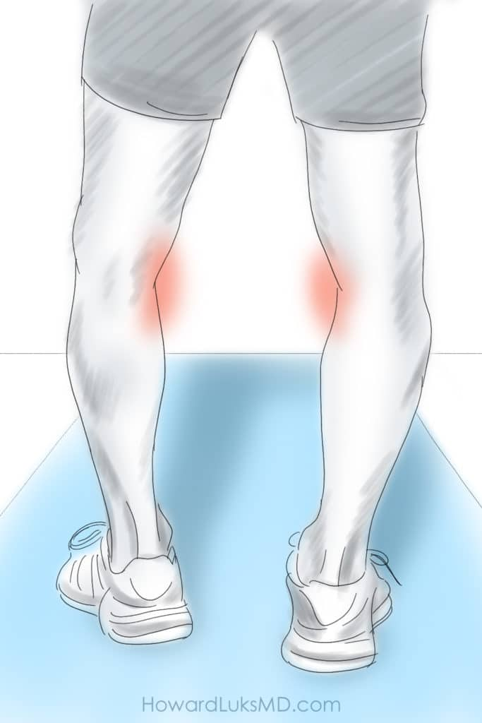 Bowed legs and medial knee pain