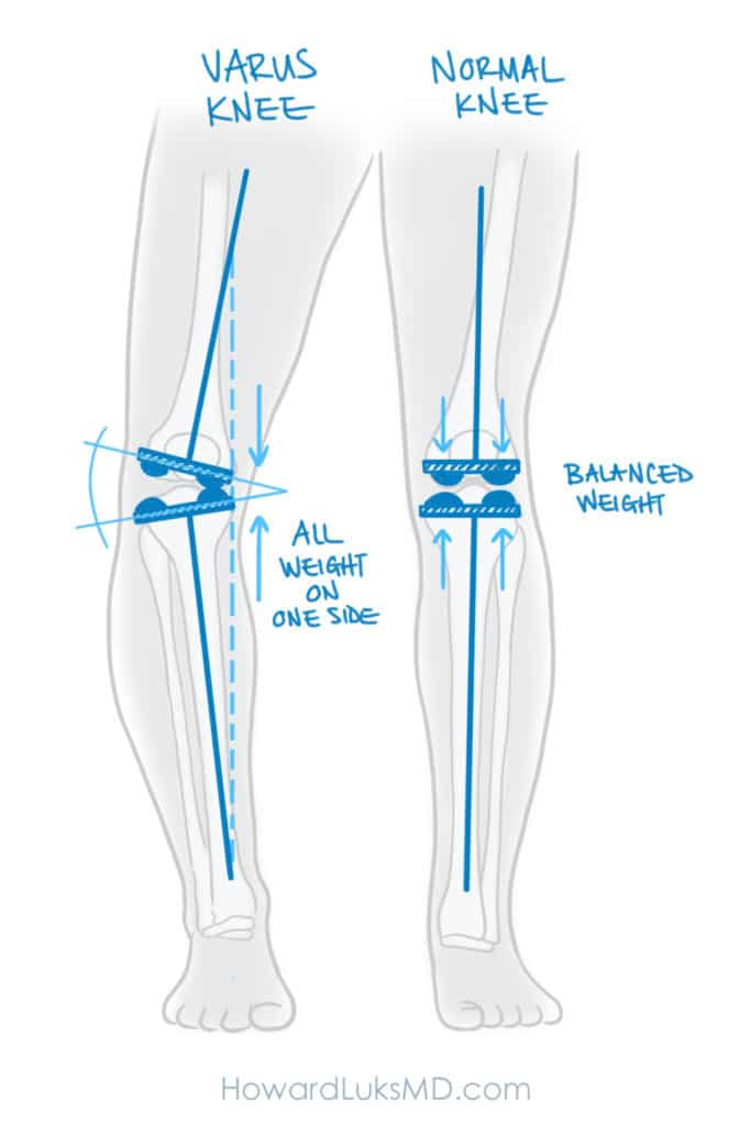 HTO for medial knee pain due to malalignment
