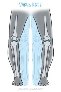Knee malalignment and the risk of osteoarthritis