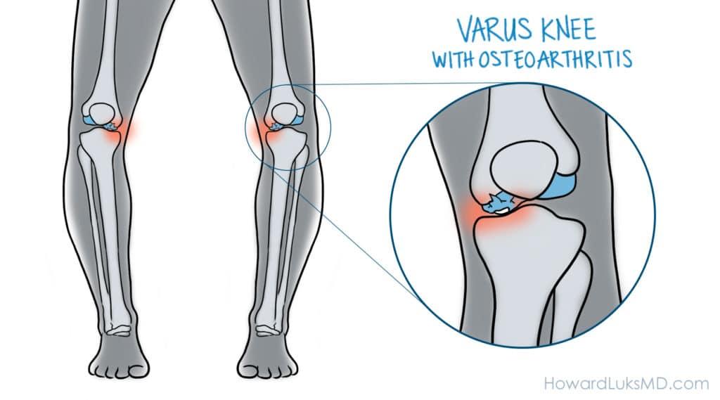 bowed knee and knee arthritis before osteotomy