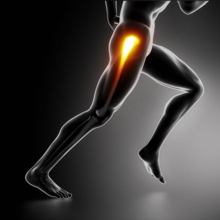 Hip and Groin Pain in Runners
