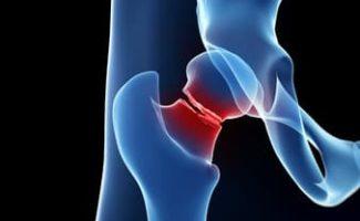 groin pain runner femoral neck stress fracture
