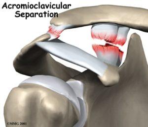 AC Separation serious shoulder injury