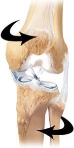 ACL Twisting Injury