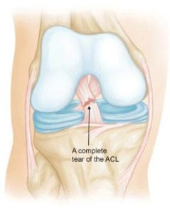 anterior cruciate ligament injury prevention