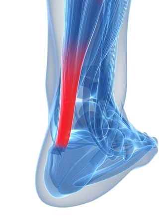 achilles tendon pain - 3 reasons why it might hurt so much, Human body