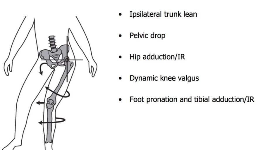 anterior-knee-pain