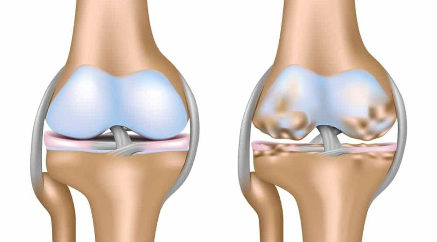 PRP Arthritis of the Knee