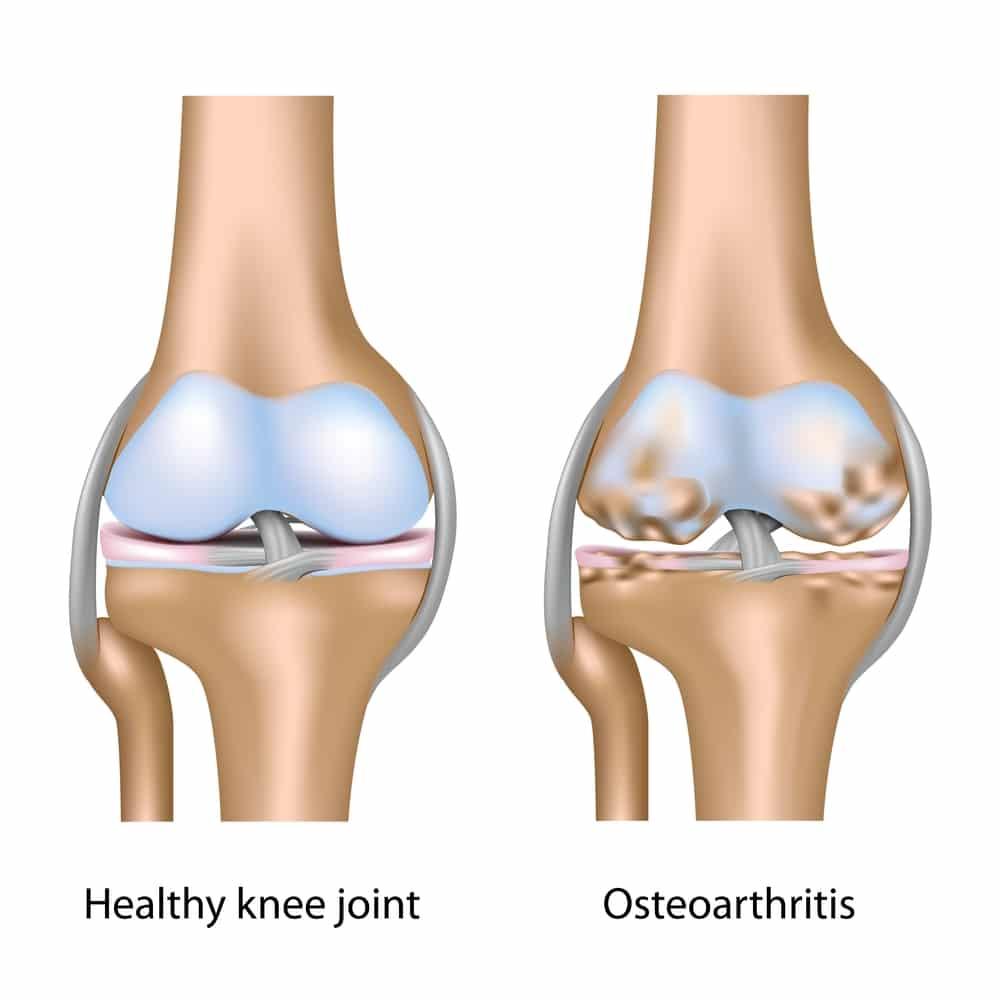 degenerative joint disease treatments - howard j. luks, md, Skeleton