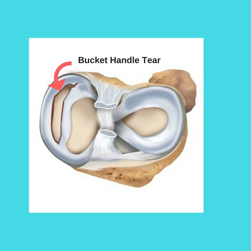 bucket handle meniscus tear