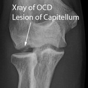 elbow pain OCD