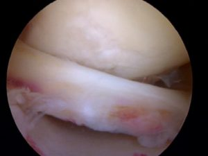 Knee pain meniscus tear