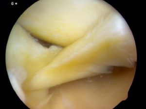 Meniscus Tear- Howard Luks- Westchester County, NY