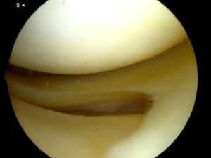 Normal Meniscus - Howard Luks - Westchester County, NY