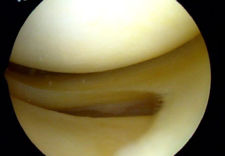 Do I need meniscus surgery