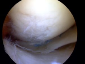 Osteoarthritis of the knee