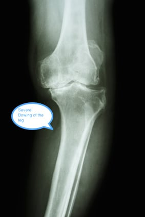 knee replacement alternatives