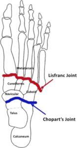 lisfranc injury