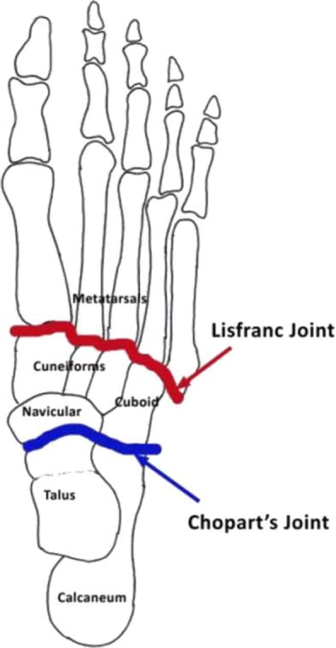 Lisfranc Injuries Of The Foot: An Injury You Must Respect