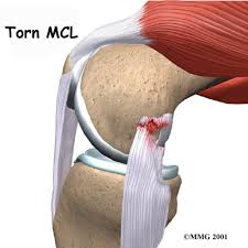 MCL Injury Recovery