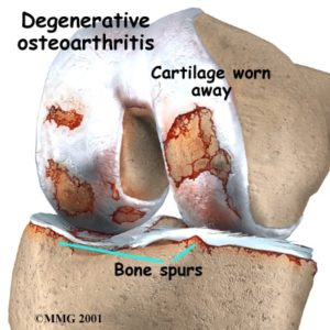 Meniscus tears and osteoarthritis