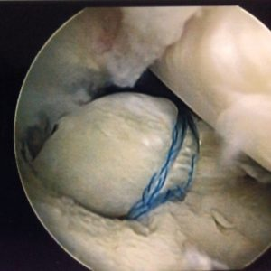 root tears of the meniscus